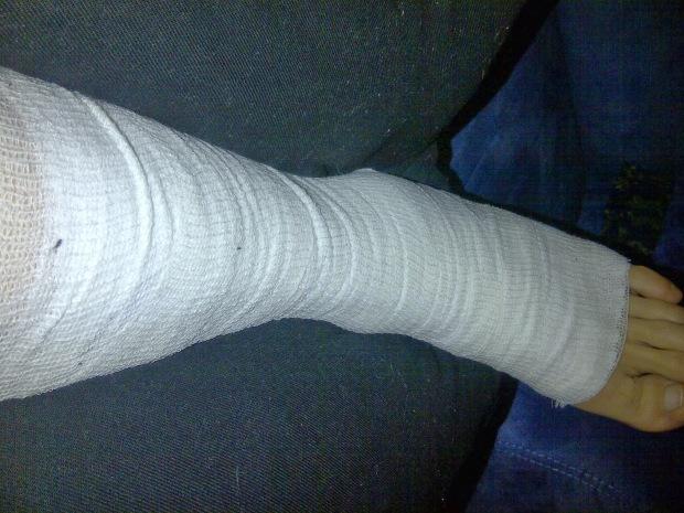 La mia caviglia fasciata dopo la botta rimediata con lo snowboard all'Alpe di Mera